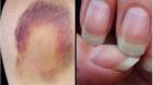 Винамавајте: И ноктите можат да откријат рак на кожа
